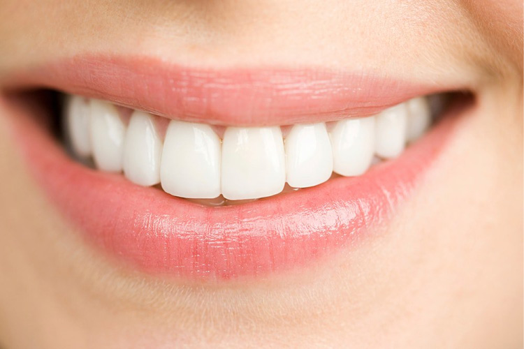 porcelain veneers create a beautiful smile
